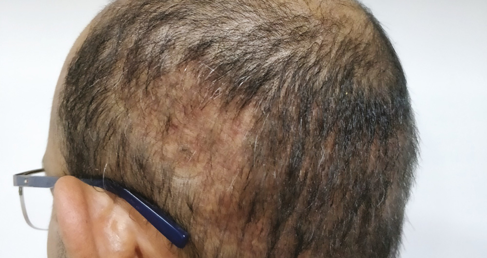 Hair Transplant Over Harvesting